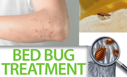 bed bug Treatment services in Delhi - AKS