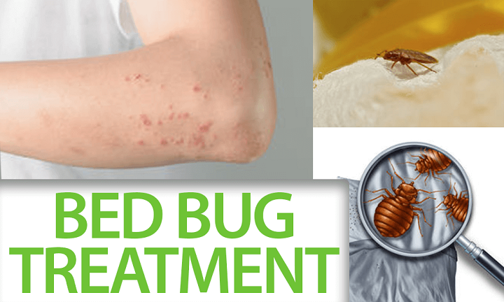 Bed bug treatment in Gurgaon